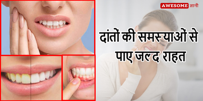 Yellow Teeth Cleaning Tips in Hindi