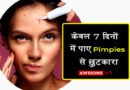 Home remedies for pimples in Hindi