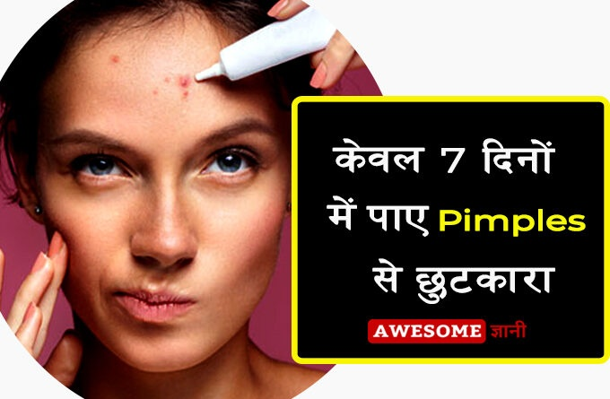 Get Rid of Pimples in 7 Days