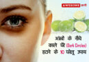 Home remedies for dark circles in hindi