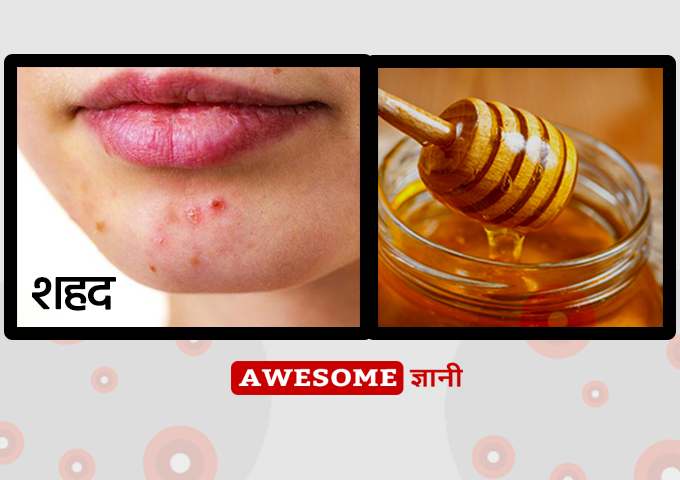 Honey - Home remedies for pimples in hindi