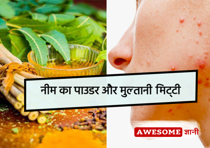 Neem powder and multani mitti - home remedies for pimples in hindi