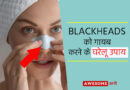 Home remedies for blackheads on nose in Hindi